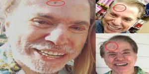silvio santos e diagnosticado de tumor na cabeca em novembro